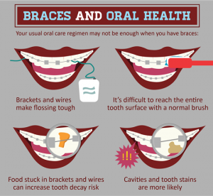 braces-and-oral-healt